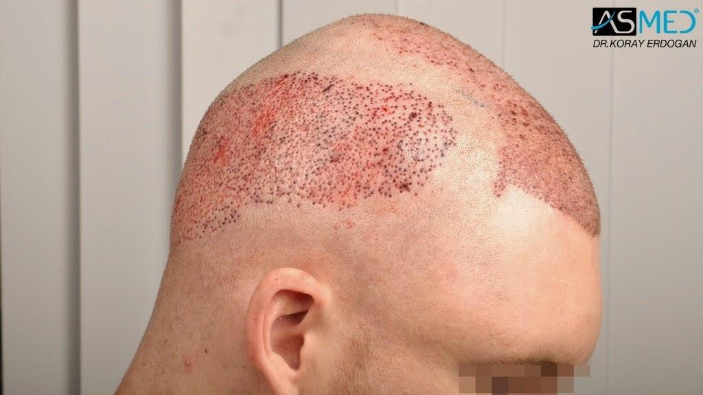 La alopecia por el medio año