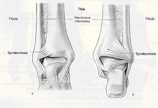 Train Out Pain Understanding The High Ankle Sprain