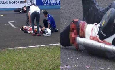 Pergelangan Kaki M. Fadli Dikhawatirkan Hampir Putus Akibat Kecelakaan Fatal di Sirkuit