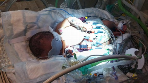 Doctors 'freeze' baby: 6-month-old Now