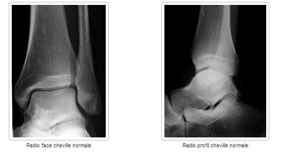 micro fracture cheville