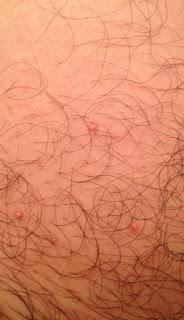 Como Eliminar Verrugas Genitales