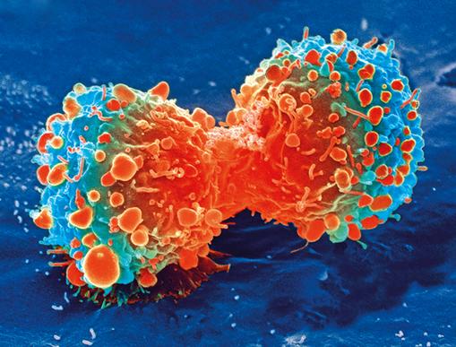 Pemanfaatan Tumbuhan Dan Buah Untuk Mengatasi Sel Kanker