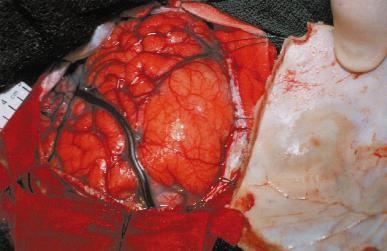 Brain Biopsy4