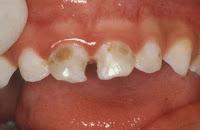caries en diente temporario o de leche