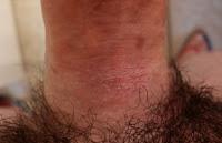 Penile Contact Dermatitis