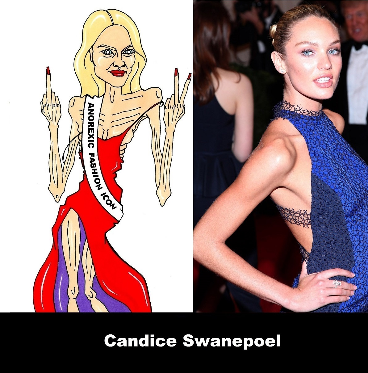 http://3.bp.blogspot.com/-icmov_W1fMQ/UXK5vKroTpI/AAAAAAAAM_I/ylPM0aNKfp0/s1600/Candice+Swanepoel+the+most+influential+Anorexic+Fashion+icon+ever+Anorexia+Kills+Portrait+Art+Satire+Critic++Humor+Chic+by+aleXsandro+Palombo+3.jpg