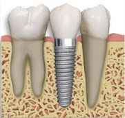 Dental Implant, Tooth Implant