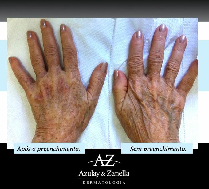 Azulay & Zanella, toxina butolínica, Joinville, Dermatologia