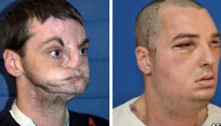 Transplante mais extenso já feito foi realizado pela Universidade de Maryland, após 36 horas de cirurgia.