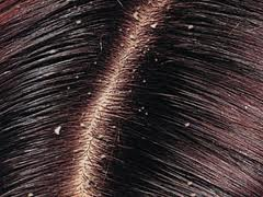 """<a href=""""http://pandawalimamedan.blogspot.com/2012/10/perangi-ketombe-dengan-4-nutrisi-sehat.html""""alt="""" rambut berketombe"""" /></a>"""