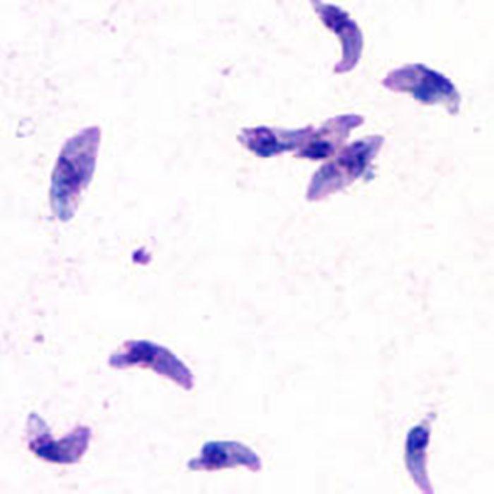 toxoplasma gondii норма