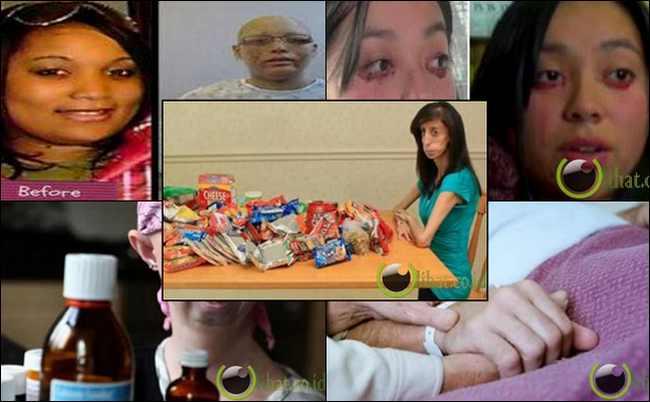 10 Orang dengan Kelainan Medis Teraneh di Dunia