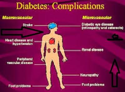 Diabetics Solution