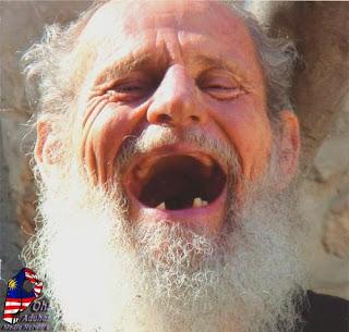 ... | Awas Stres Dapat Membuat Gigi Anda Cepat Ompong | foto unik gokil