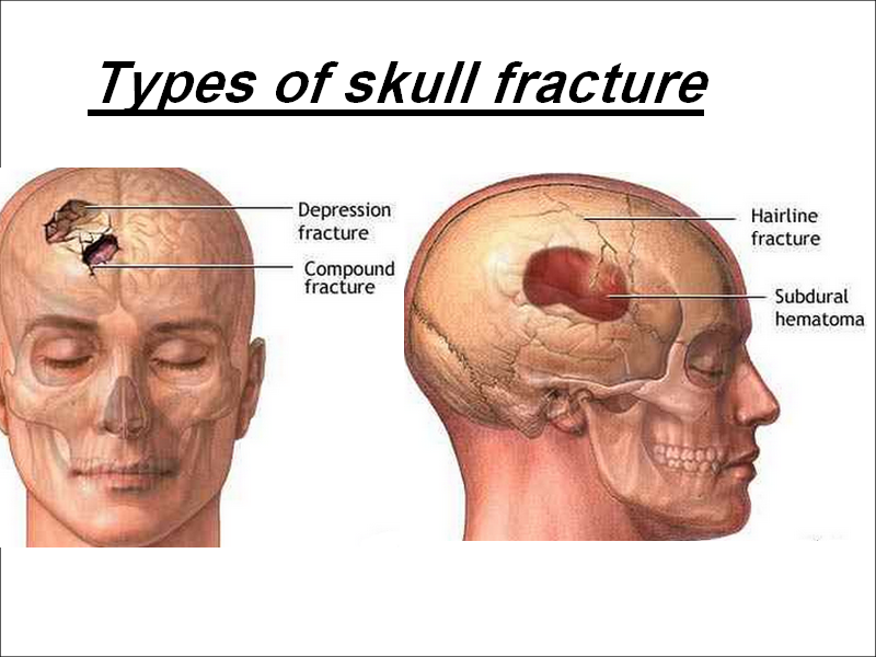 Depressed Skull Fracture | mouade agafay