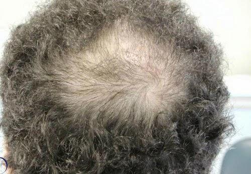 Nam giới hói đầu 'là chỉ báo bệnh tim'