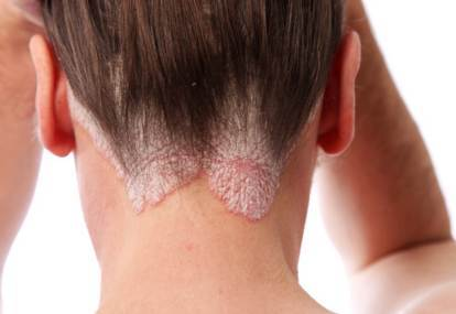skin cancer on the scalp