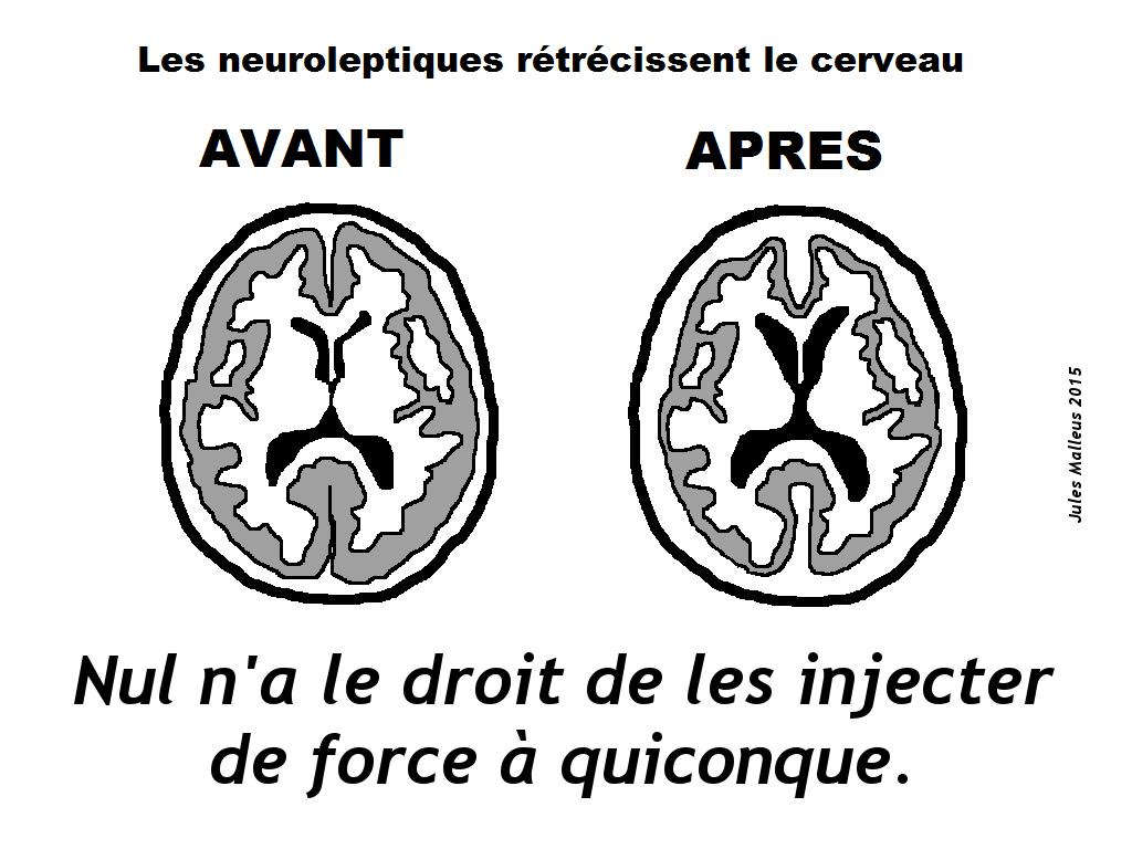"""Le dommage cérébral """"thérapeutique"""""""