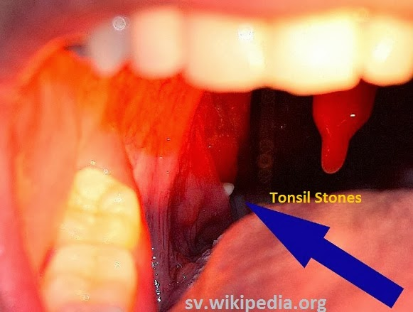 I Have Tonsil Stones