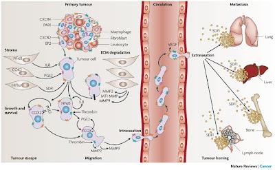 metastasis kanker