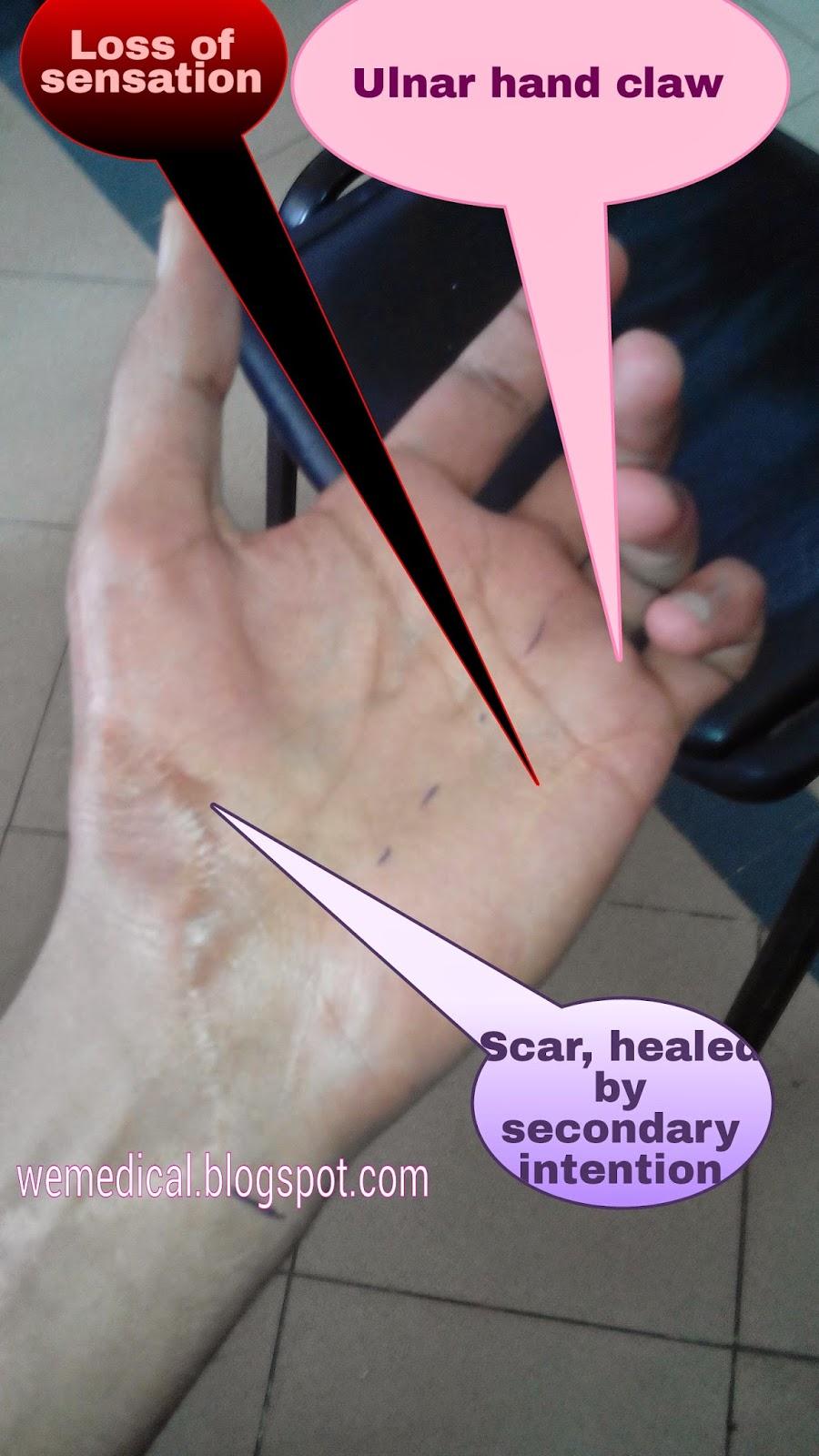Ulnar Claw Hand;   Wemedical