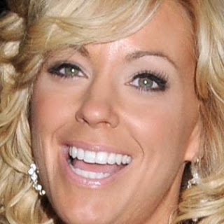 Kate Gosselin veneers