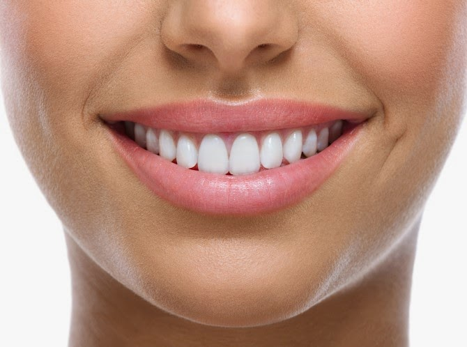 Dentes bem brancos, Clareamento Dental, Recomendo, Tratamento eficaz, Revheim Dicas