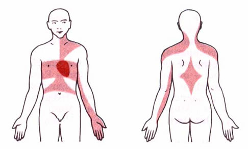 angina definition : what is angina pectoris? | health and beauty, Skeleton