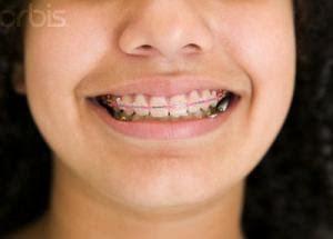 biaya pasang behel di dokter gigi