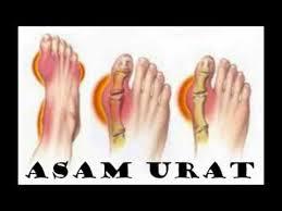 obat alami kaki bengkak karena asam urat