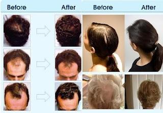 hur använder man ricinolja i håret