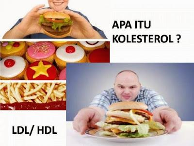 Mengetahui Cara Mengatasi Kolesterol Untuk Menjaga Kesehatan tubuh