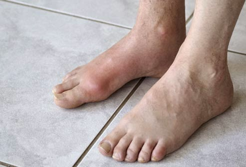 ubat gout