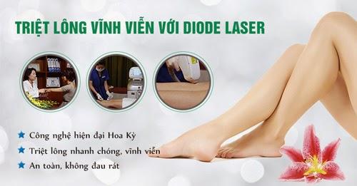 7 lý do bạn nên triệt lông vĩnh viễn bằng công nghệ Diode Laser
