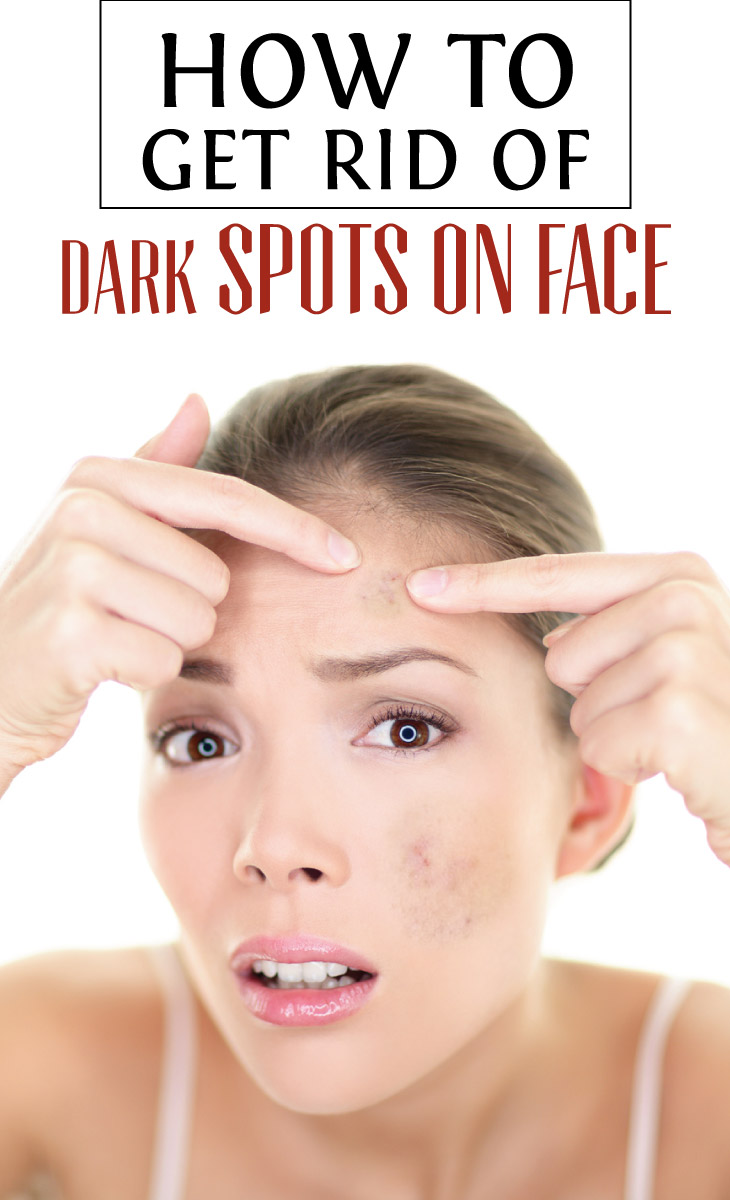 How to get rid of facial spots