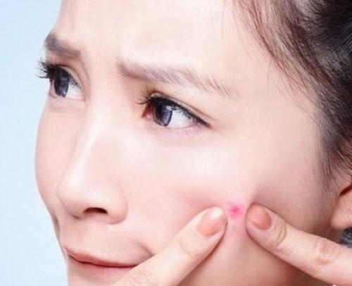 Mẹo vặt Bí quyết hay nặn mụn an toàn không để lại sẹo
