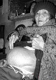 embarazada hace 60 años