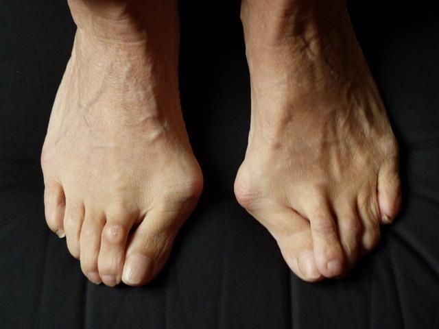 Mal au dos mal aux pieds oignons hallux valgus et for Douleur pied exterieur