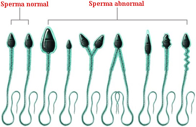 Sperma normal dan abnormal