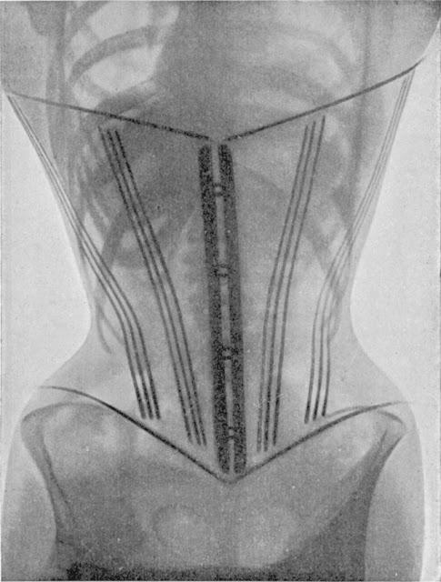 Женщины в корсетах под рентгеновскими лучами