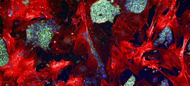 iPS Stem Cells