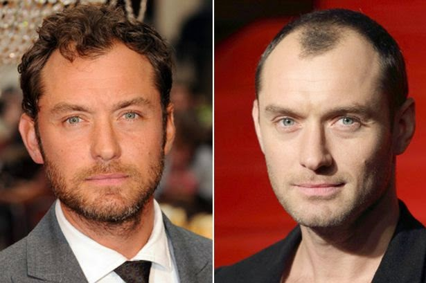 Law , now 42, has obviously gotten a hair transplant and is actually a ...