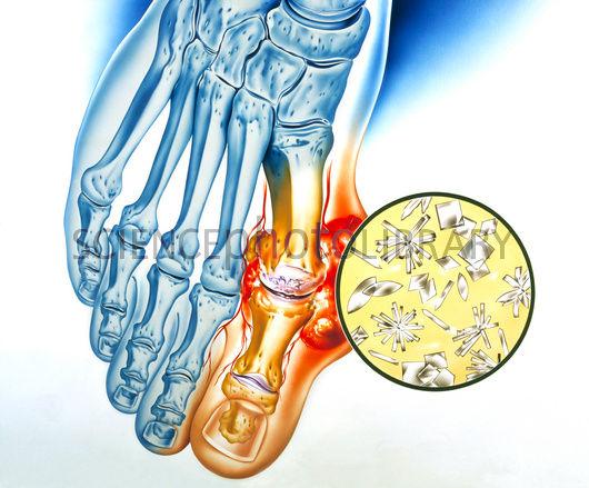 pahami gejala asam urat yang menyerang sendi anda jamu