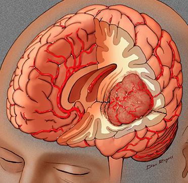 Penyebab dan Penyembuhan Kanker Otak