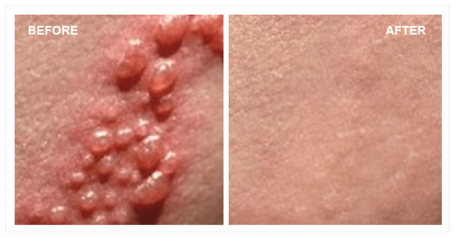 Herpes Zoster – Also Called Shingles, Zona Or Zoster