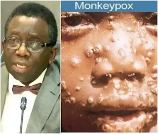 Monkey Pox Virus, What Nigerians Must Avoid Eating These – FG