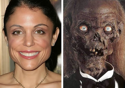 Bethenny Frankel before and after funny cosmetic surgery