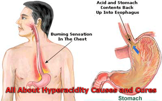 All About Hyperacidity Causes and Cures