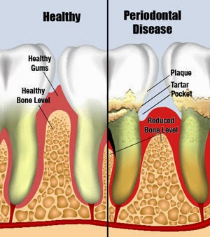 http://www.bestdentistbangalore.com/periodontics/